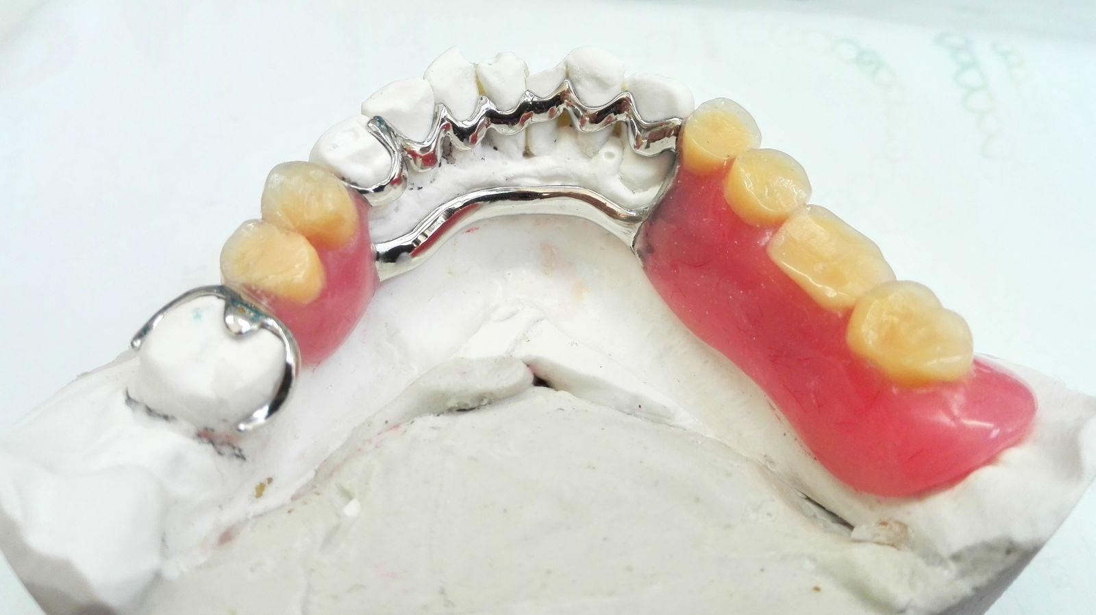 proteza szkieletowa 3 - Protezy szkieletowe