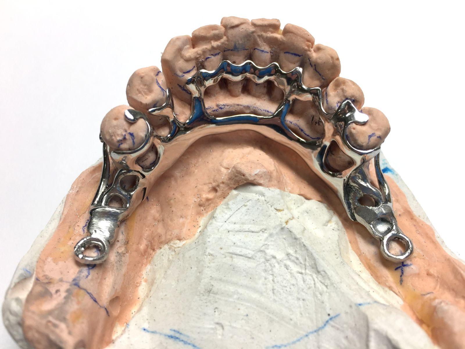 proteza szkieletowa gdansk - Protezy szkieletowe