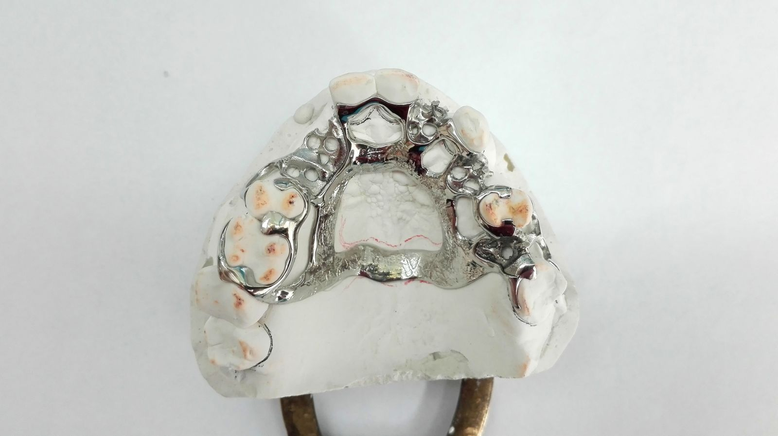 protezy szkieletowe w gdansku - Protezy szkieletowe