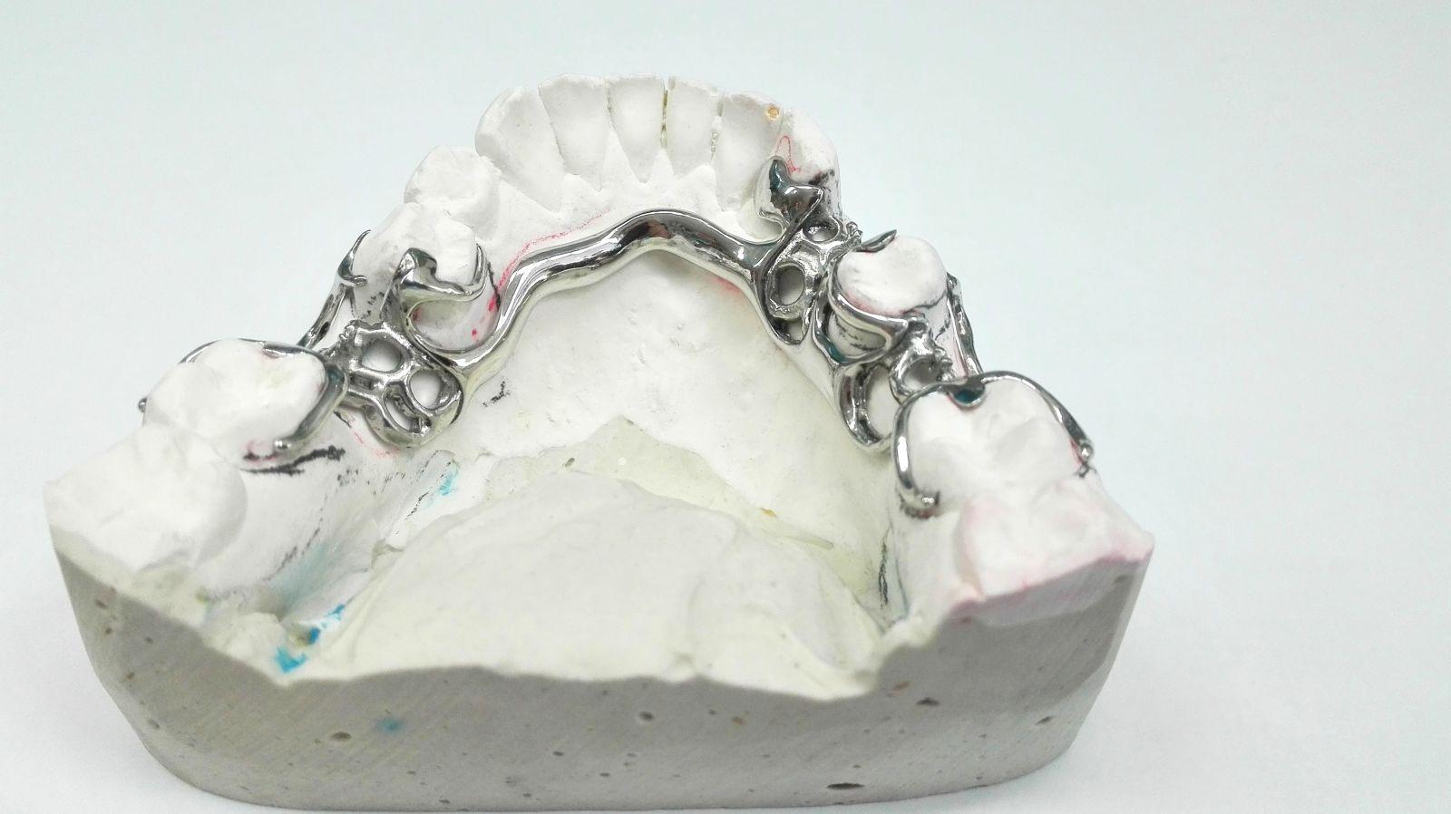 protezy szkieletowe - Protezy szkieletowe